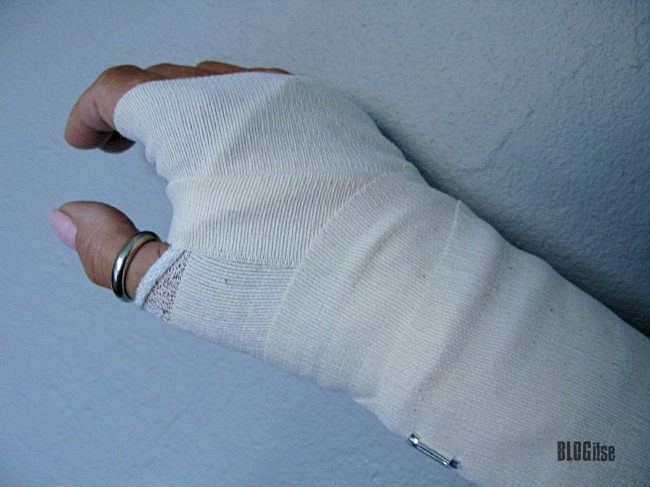 my wrist splint by BLOGitse